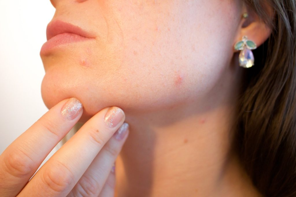 Home Remedies for Reducing Acne Scars