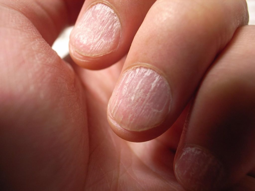 brittleness in the nails