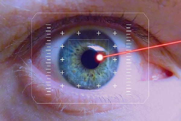 Can Lasik Cure Double Vision